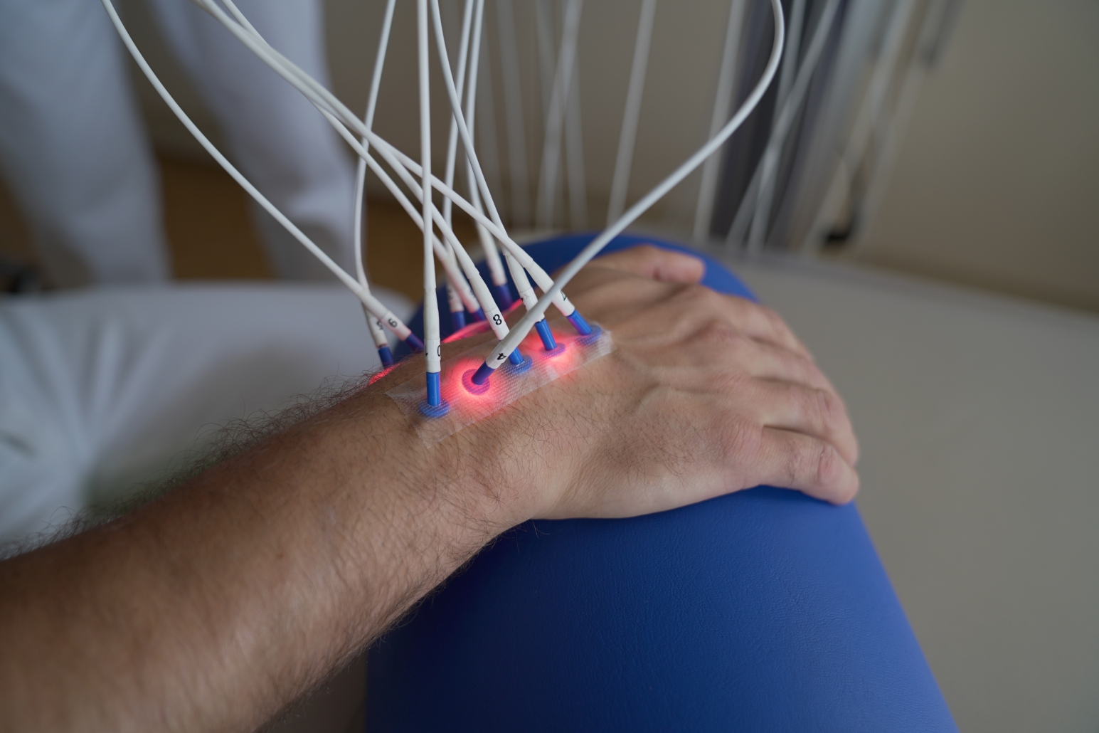 Laserneedle-Therapie